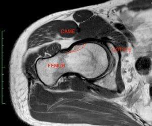 conflit de hanche lesion labrum